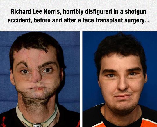 This Surgeon Did A Fantastic Job