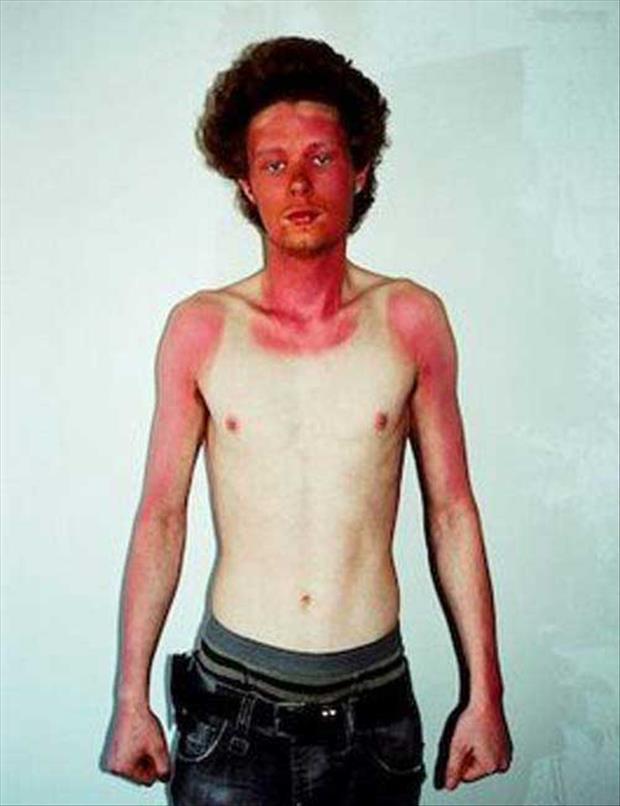 funny-sunburn-4