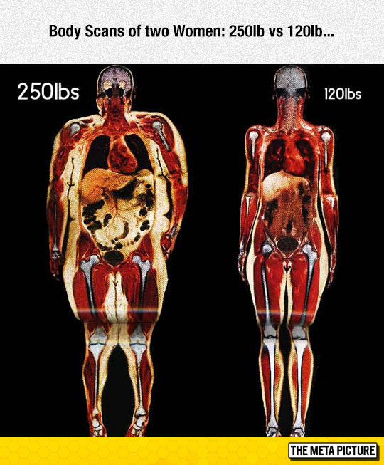 cool-body-Scans-fat-woman-thin