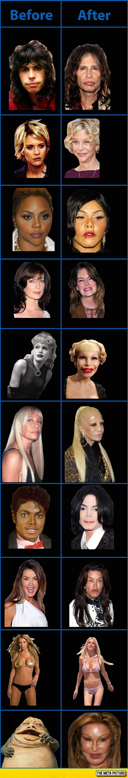 funny-celebrities-plastic-surgery-wrong