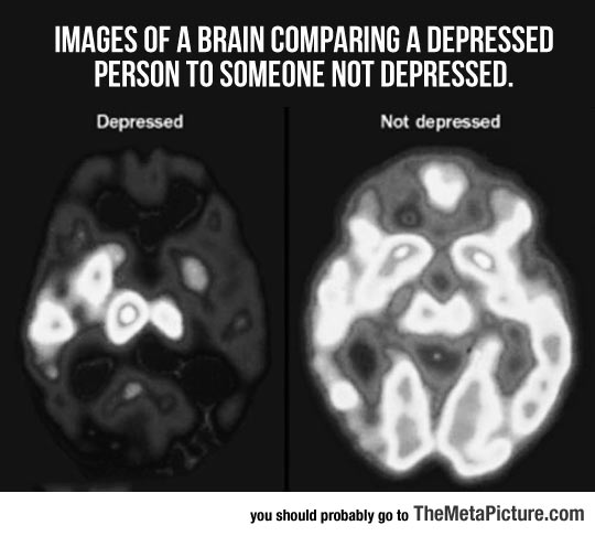 When A Brain Is Depressed