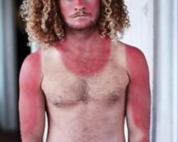 Funny-Sunburn-3