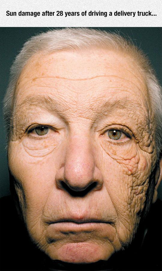 cool-sun-damage-skin-face