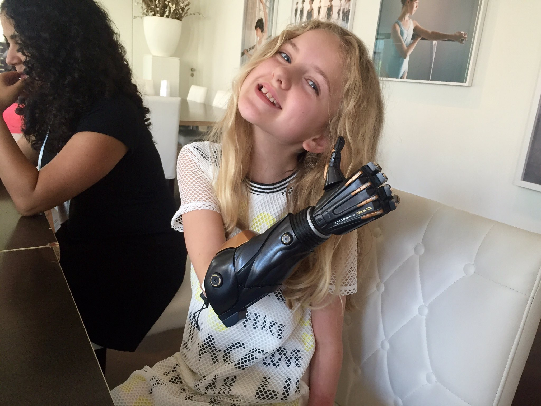 A girl with a bionic arm