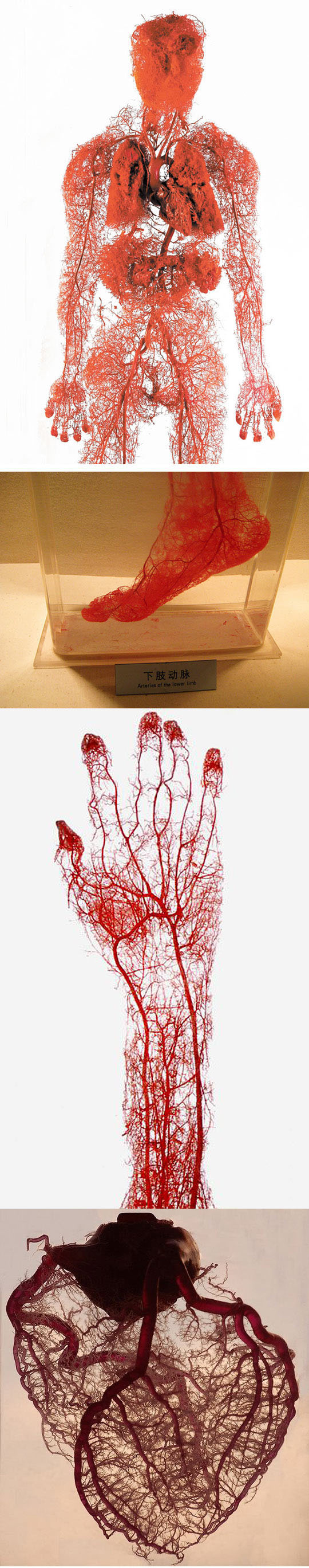 Photos Of Blood Vessels In The Human Body